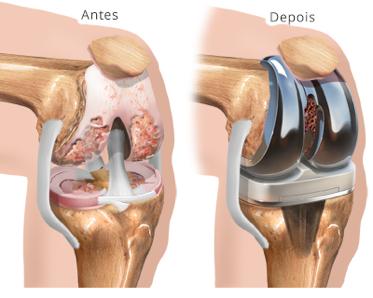 Protese do joelho